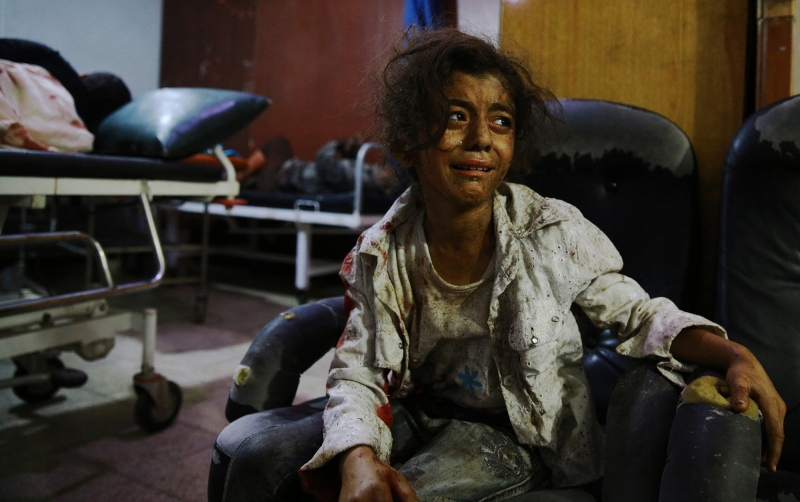 A wounded Syrian girl cries at a make-shift hospital in the rebel-held area of Douma, east of the capital Damascus, following reported air strikes by regime forces, on August 12, 2015. At least 27 civilians were killed in Syrian government air strikes on the Eastern Ghouta region near Damascus according to a monitoring group. AFP PHOTO / ABD DOUMANY