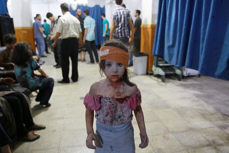 -- AFP PICTURES OF THE YEAR 2015 --A wounded Syrian girl looks on at a make shift hospital in the rebel-held area of Douma, east of the capital Damascus, following shelling and air raids by Syrian government forces on August 22, 2015. At  least 20 civilians and wounded or trapped 200 in Douma, a monitoring group said, just six days after regime air strikes killed more than 100 people and sparked international condemnation of one of the bloodiest government attacks in Syria's war.   AFP PHOTO / ABD DOUMANY